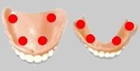 Zahnprothese Haftcreme